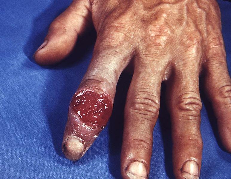 грибки паразиты в организме человека