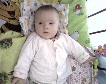 От чего дети рождаются с синдромом дауна?