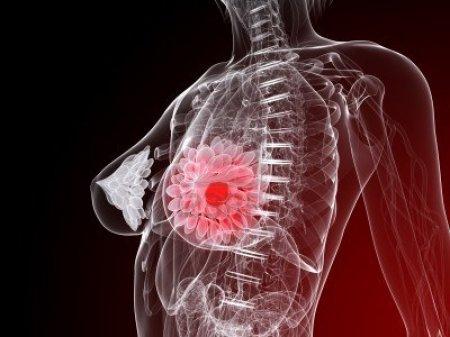 Как лечится доброкачественная опухоль молочной железы?