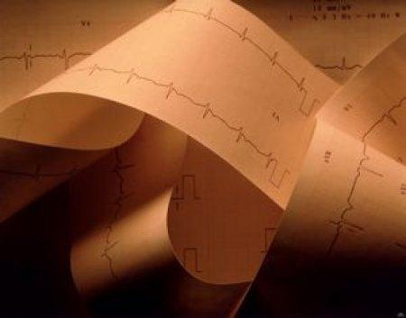 Что такое кардиомиопатия алкогольная?