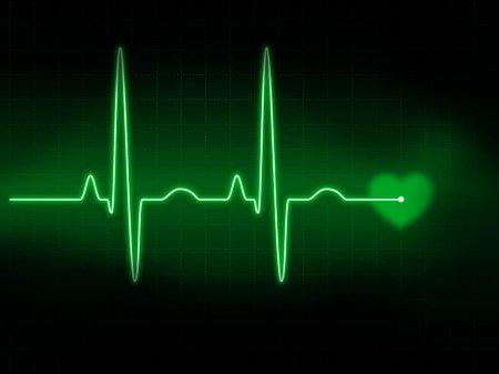 Что такое аритмия сердечная и почему она возникает?