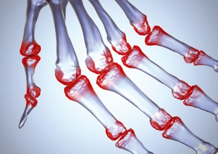 Как лечить ревматоидный артрит эффективно?