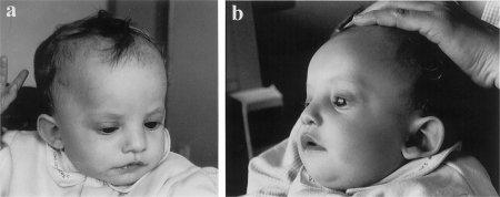 Чем опасен синдром Вольфа Хиршхорна?