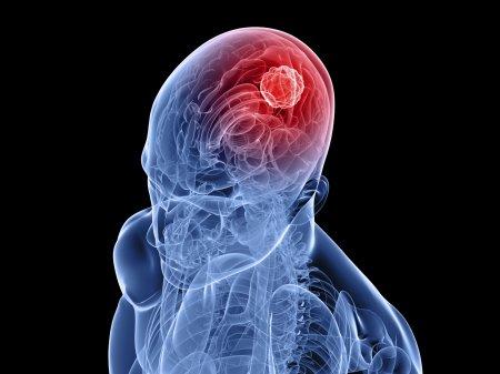 Как лечить энцефалит головного мозга?