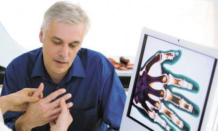 Поможет ли сульфасалазин при ревматоидном артрите?