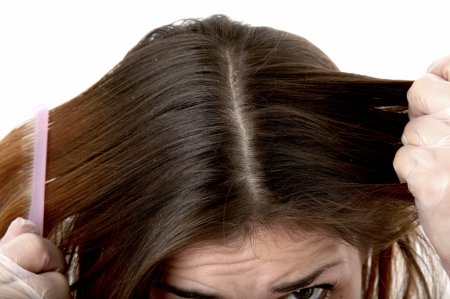 Как лечится себорея на голове?
