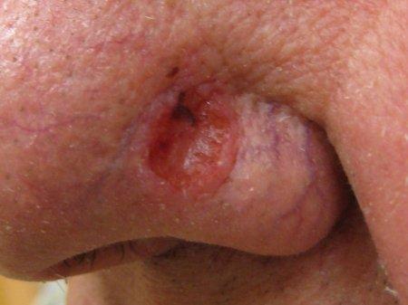 Как лечить базально-клеточный рак кожи?