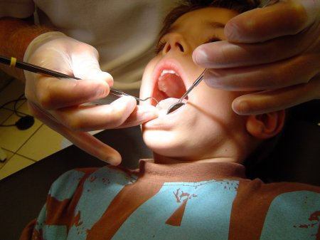 Как лечить пульпит молочного зуба?