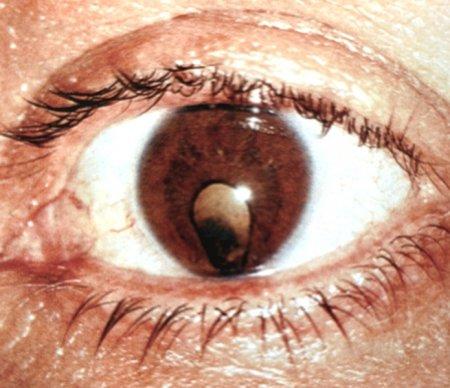 Что такое колобома зрительного нерва и как это можно вылечить?