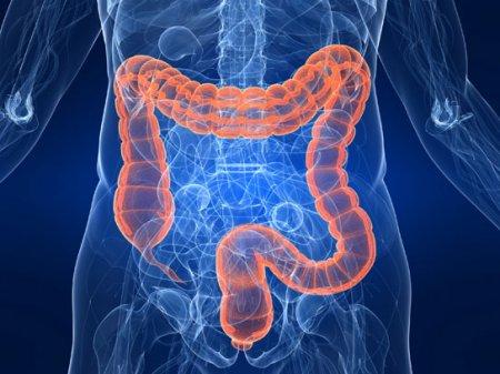 Полипы в кишечнике. Симптомы и профилактика.