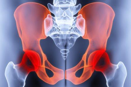 Боль в тазобедренном суставе. Причины и симптомы.