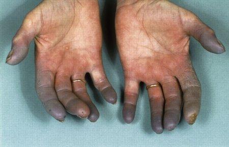 Болезнь Рейно. Симптомы и причины болезни.