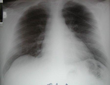 Тромбоэмболия легочной артерии. Симптомы и опасности заболевания.